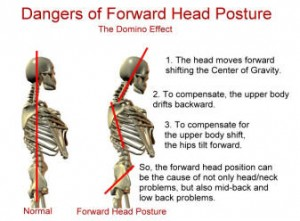 forward-head-posture-dysfunction1