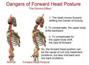 forward-head-posture-dysfunction1